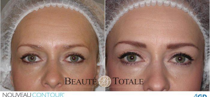 18% korting op permanente make-up voor uw wenkbrauwen bij Beauté Totale uit Den Haag